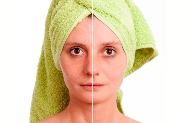 Trucos caseros para eliminar las manchas en la piel. Tips para borrar las manchas en la piel del rostro y cuerpo