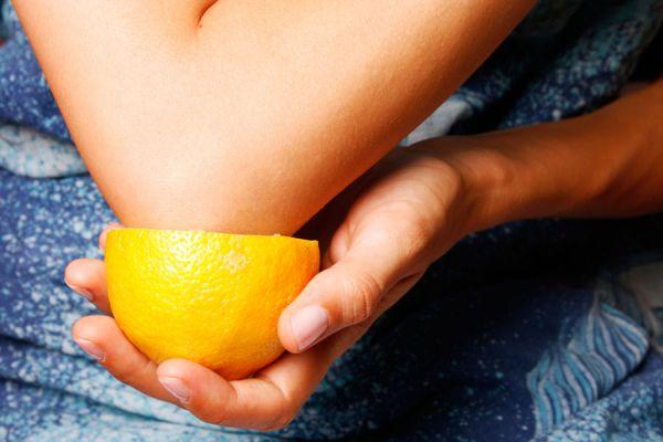 Tratamientos caseros para quitar manchas en los codos. Cómo cuidar la piel de los codos y quitar manchas. Tips para quitar las manchas de los codos