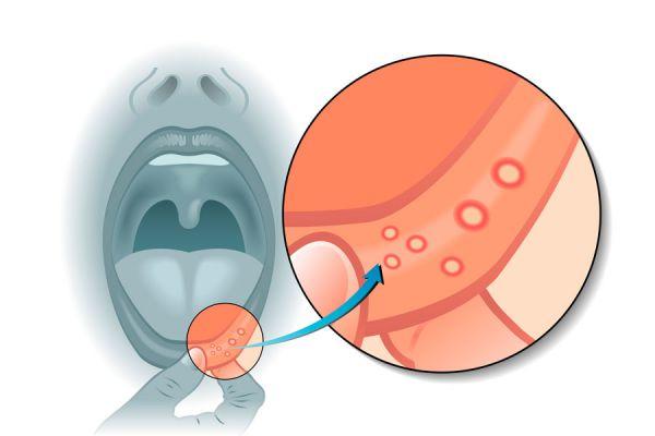 Cómo curar las llagas de la boca más rápido. Métodos caseros para curar las aftas. Tips para acelerar el curado de aftas y llagas