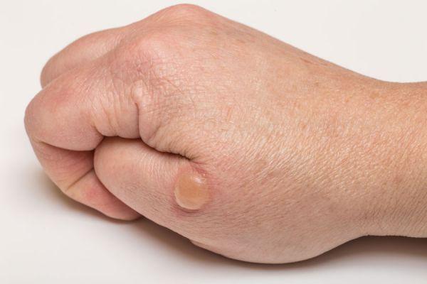 La celidonia mayor al tratamiento atopicheskogo de la dermatitis