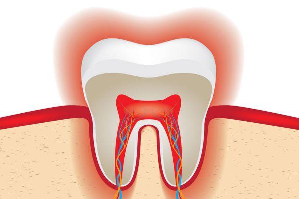 Cómo evitar el desgaste del esmalte de los dientes