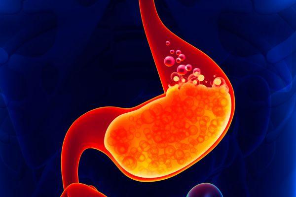 los tomates suben el acido urico metabolismo del acido urico powerpoint acido urico signos y sintomas