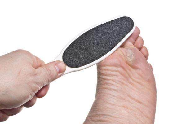Remedios caseros para Quitar los Callos