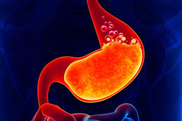 Cómo reconocer el reflujo gastroesofágico