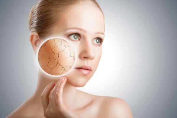 Remedios caseros para evitar la sequedad de la piel. Cómo combatir la piel reseca con tratamientos naturales. Recetas para la piel seca