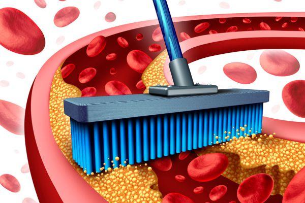 Remedios caseros para la arteriosclerosis