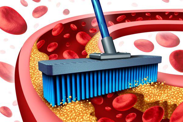 Cómo aliviar la arteriosclerosis haciendo dieta