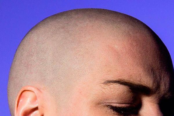 Tips para evitar la caída del pelo con fenogreco. Tratamiento casero con fenogreco para la caída del pelo. Combatir la alopecia con fenogreco