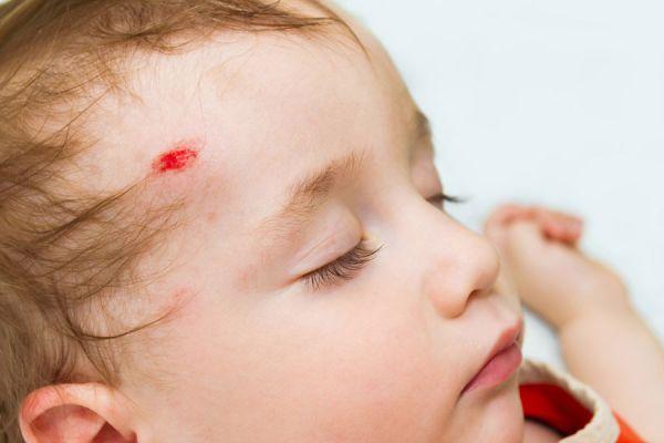 Cómo actuar si un bebé se golpea la cabeza. Cómo curar heridas en la cabeza. Cuándo ir al médico si un niño se golpea la cabeza