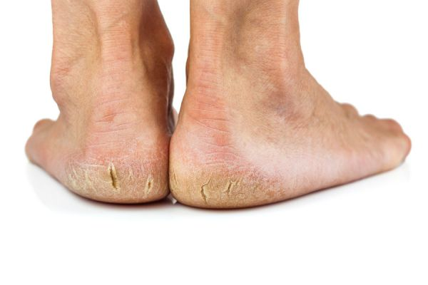 Remedios caseros para los pies secos y agrietados. Cómo curar los talones agrietados y secos. Cremas caseras para reparar los talones secos
