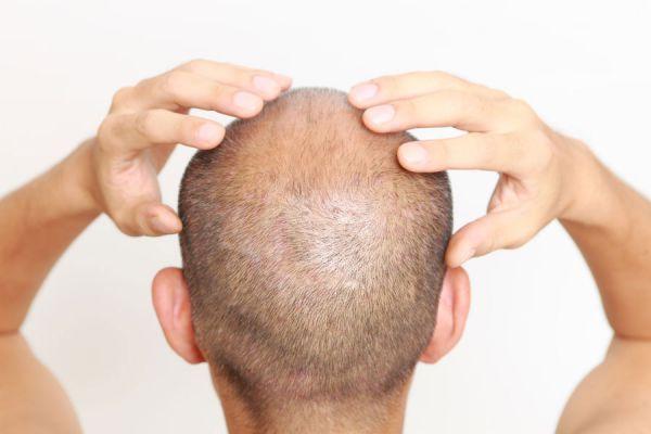 Técnicas para cepillar el cabello. Tips para cepillar el pelo correctamente. Consejos para un buen cepillado del pelo