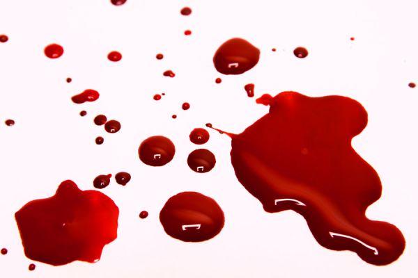 Interpretacion de los sueños: sangre y heridas. El lenguaje de los sueños con sangre. Qué significa soñar con sangre, heridas y médicos