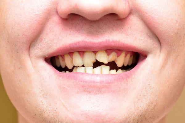 Qu significa so ar con dientes que se caen for Suelo que se me caen los dientes