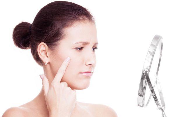 Consejos para prevenir el acné sin gastar dinero. Metodos caseros y efectivos para prevenir el acné. Trucos económicos para evitar el acné