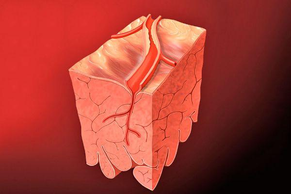 Claves para entender qué es el colesterol. Cómo saber si el colesterol es bueno o malo. Cómo saber si los niveles de colesterol afectan la salud