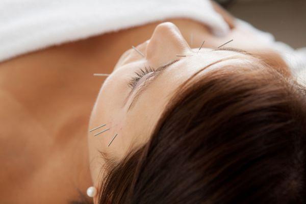 Cómo aliviar dolores con acupuntura. Beneficios de la acupuntura para aliviar dolores. Cómo calmar dolores con acupuntura