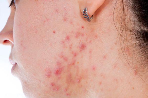 Recetas de mascarillas contra el acné. Cómo combatir el acné con mascarillas caseras. Recetas de mascarillas caseras para eliminar el acné