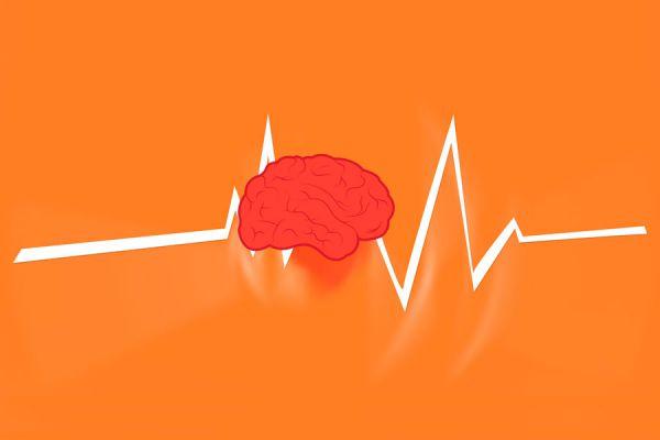 Los ataques de epilepsia se generan por una alta actividad eléctrica en el cerebro