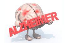 ¿Qué es el Alzheimer?