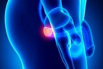 Síntomas y Causas de un Desorden Prostático
