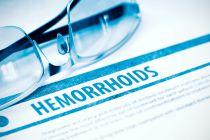 Cómo tratar las Hemorroides Naturalmente