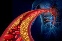 Enfermedades Vasculares. ¿Cómo prevenirlas?
