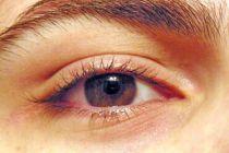 Cómo prevenir las arrugas en los ojos