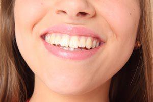 Cómo tener dientes más blancos