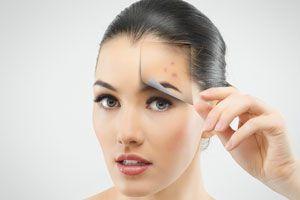 Ilustración de Cómo combatir el acné. La solución