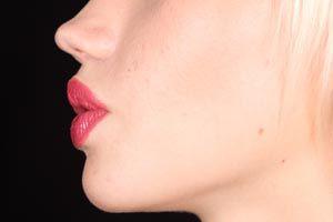 Ilustración de Cómo dar volumen a los labios finos