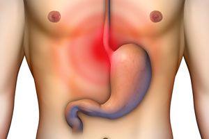 Cómo calmar la acidez estomacal