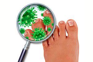 Consejos para evitar el contagio de los hongos en los pies. Cómo prevenir la aparición de hongos en los pies. Evita los hongos en los pies