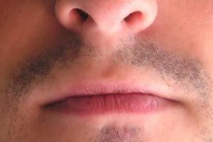 Ilustración de Remedios caseros para el herpes labial