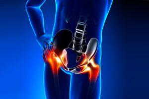 Ilustración de Cómo saber si una persona está en riesgo de padecer osteoporosis