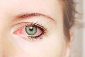 Remedios Naturales para Tratar la Conjuntivitis