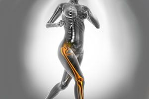 Ilustración de Como combatir y evitar la osteoporosis