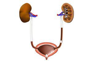 Remedios naturales para aliviar los síntomas de las piedras en el riñón. Tratamientos caseros para las piedras del riñon