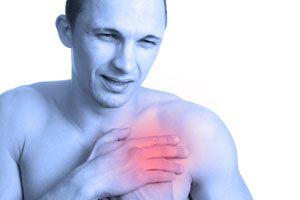 Síntomas y Causas de la Arteriosclerosis