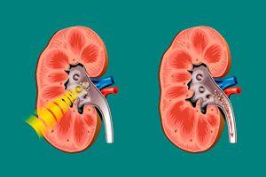 Ilustración de Cómo Bajar el ácido úrico