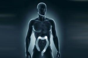 Causas y Síntomas de las Hemorroides