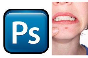 Ilustración de Como quitar granos y manchas de la piel con Photoshop