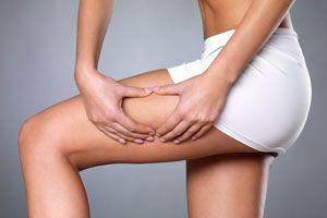 Cómo prevenir la celulitis de manera natural