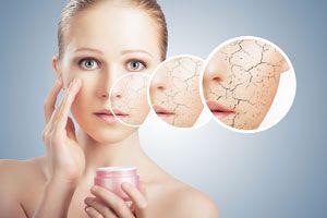 Ilustración de Cómo prevenir y cuidar la Piel Seca. Consejos naturales