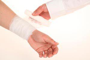 Ilustración de Cómo Curar las Heridas por Quemaduras