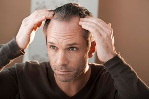 Tratamientos contra la alopecia
