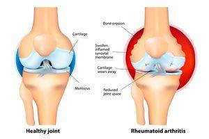 Ilustración de Cómo se produce la artritis