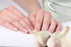 Que curar la psoriasis sobre las uñas