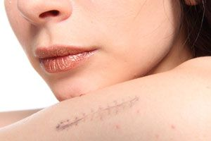 Ilustración de Cómo disimular una cicatriz