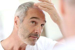 Trucos y consejos para disimular la calvicie. Métodos para ocultar la calvicie. Tips para evitar la caida del cabello y disimular la calvicie