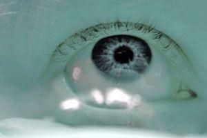 Ilustración de Cómo usar los lentes de contacto tóricos